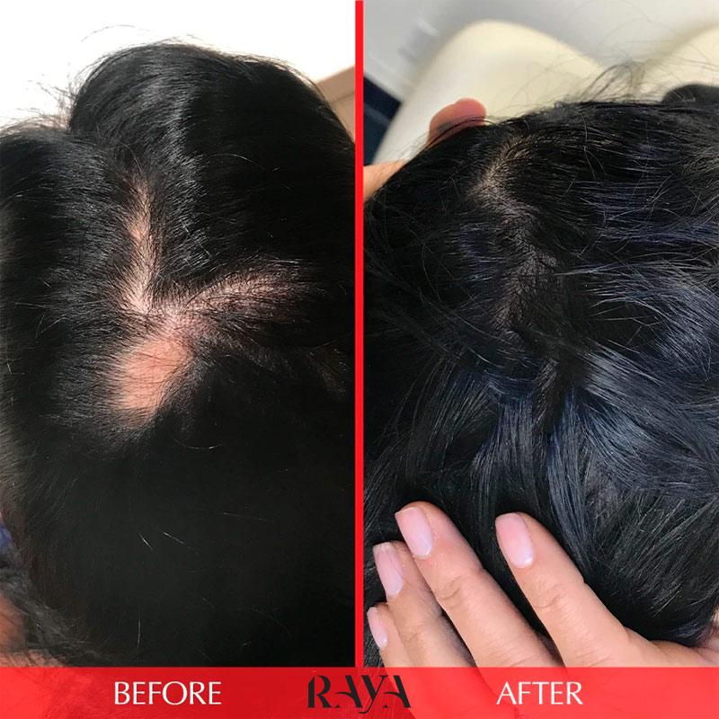 کپسول تقویت مو هیرتامین مدل ادونس فرمولا رنگ قرمز Hairtamin Advanced Formula Hair Vitamin